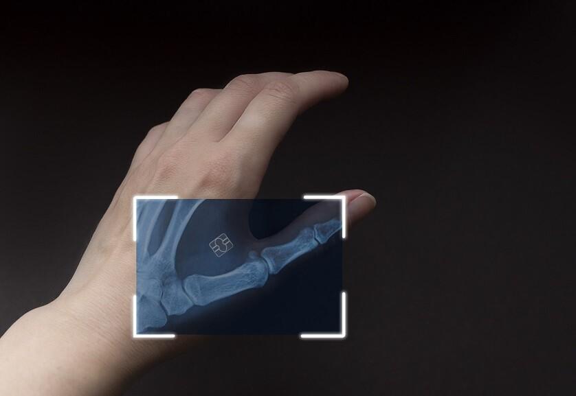 Mikroczipy umieszczane pod skórą